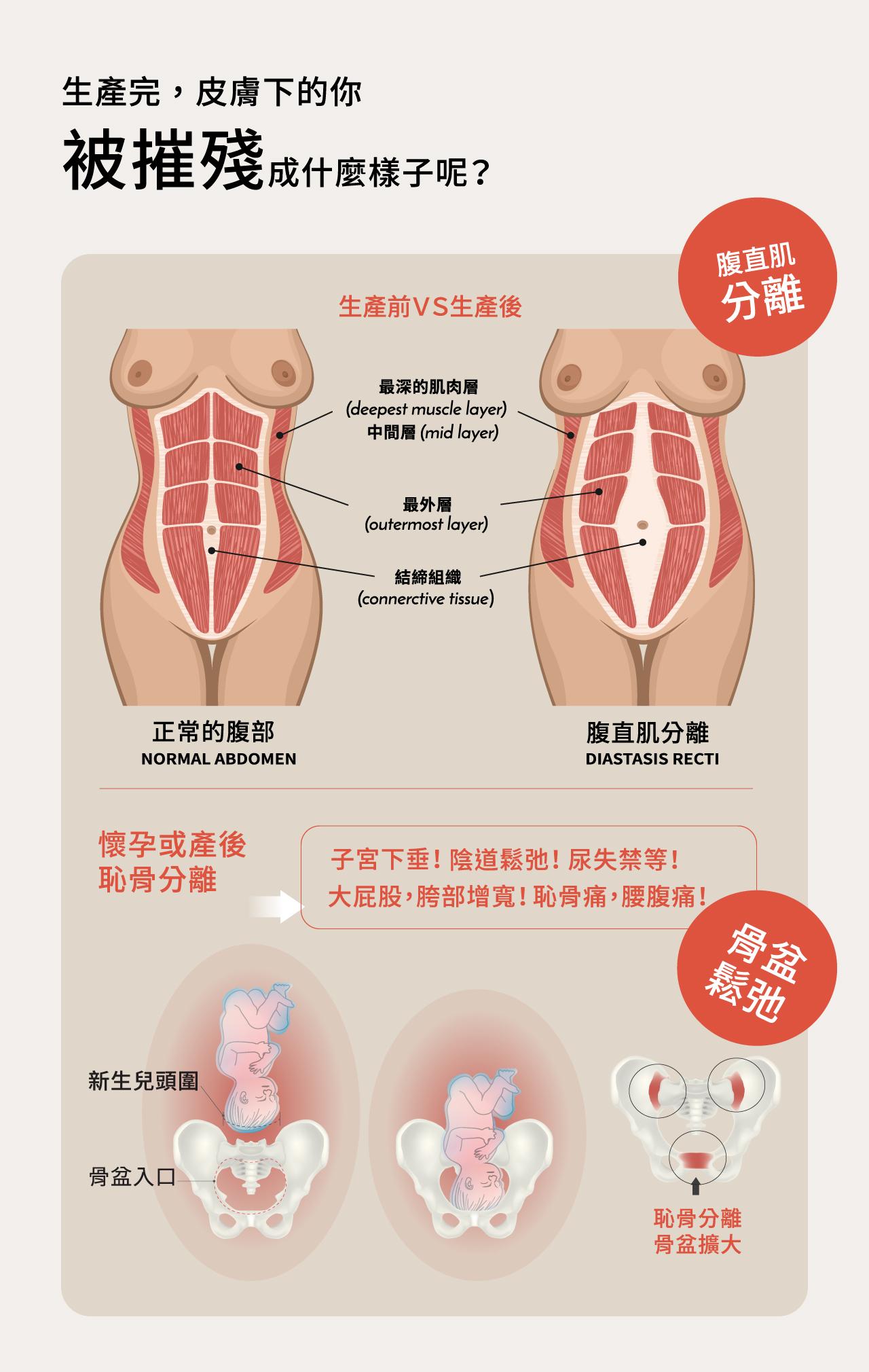六甲村,月子塑身,坐月子,產後束腹帶,夜用型彈性束腹,24h縮腹內褲,束臀帶,自然產,剖腹產,產後瘦身