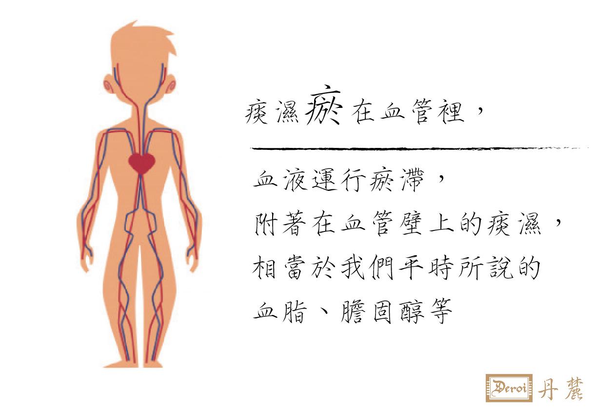 高血壓,中風,高血脂,血管阻塞