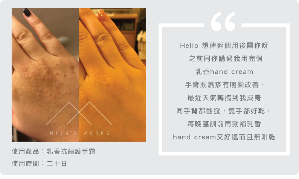 濕疹,手濕疹,護手霜,hand cream